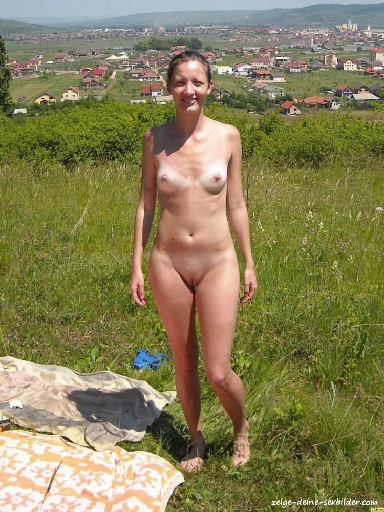 Sonnenbrand Nackt